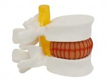 腰椎间盘突出演示模型(大腰椎带血球)