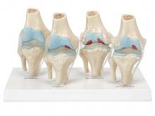 膝关节健康病态比较模型(4阶段膝关节病变模型)