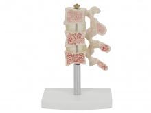 脊椎典型病变模型(骨质疏松症模型)