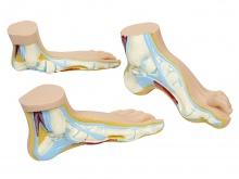 正常足、扁平足、弓形足模型
